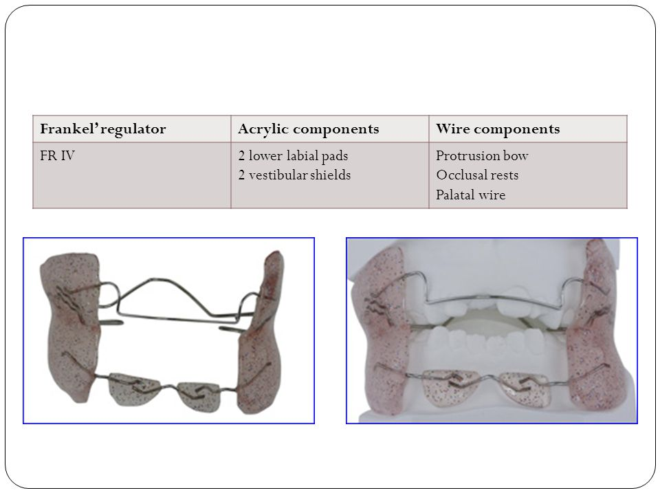 Frankel' regulatorAcrylic componentsWire components FR IV2 lower labial pads 2 vestibular shields Protrusion bow Occlusal rests Palatal wire