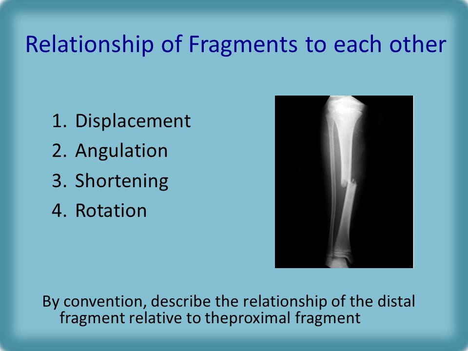 Relationship of Fragments to each other 1.Displacement 2.