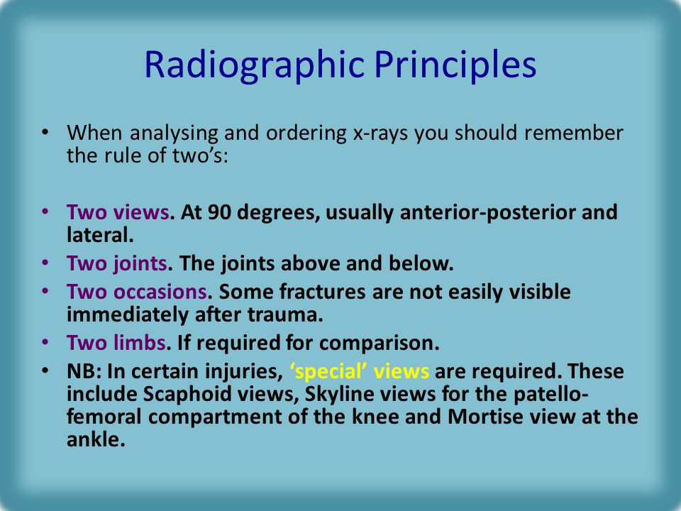 Radiographic Principles When analysing and ordering x-rays you should remember the rule of two's: Two views.