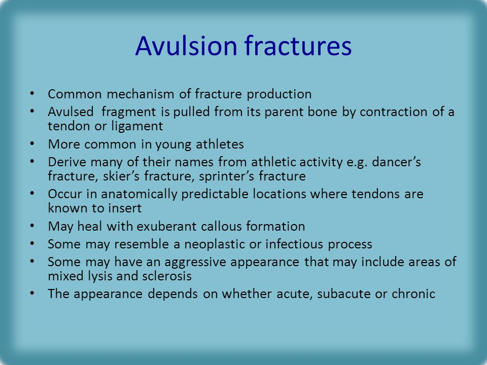 Avulsion fractures Common mechanism of fracture production Avulsed fragment is pulled from its parent bone by contraction of a tendon or ligament More common in young athletes Derive many of their names from athletic activity e.g.