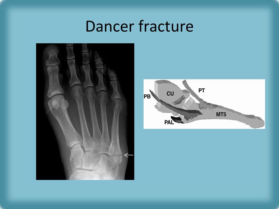 Dancer fracture