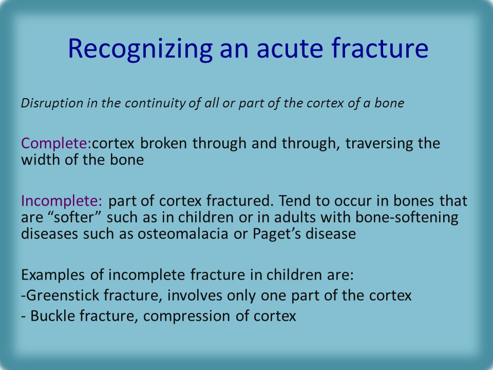 Recognizing an acute fracture Disruption in the continuity of all or part of the cortex of a bone Complete:cortex broken through and through, traversing the width of the bone Incomplete: part of cortex fractured.