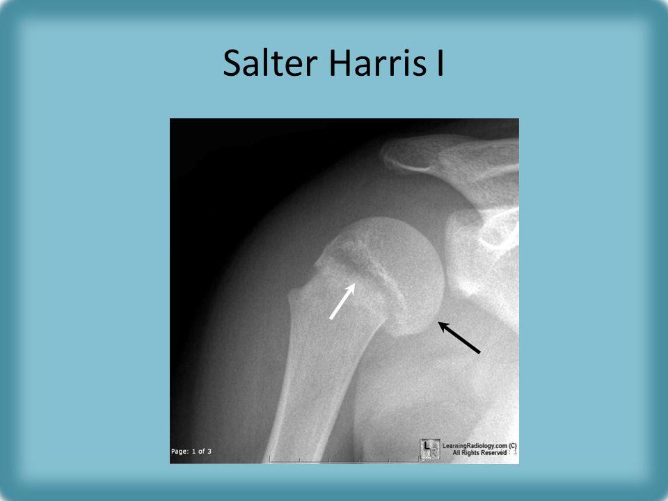 Salter Harris I