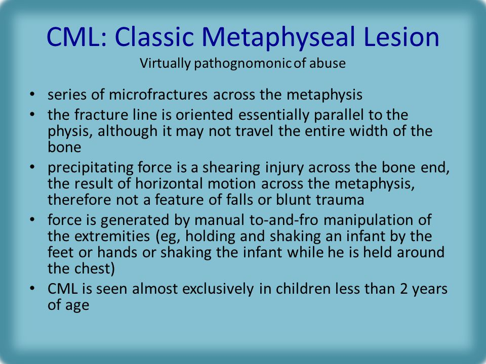 CML: Classic Metaphyseal Lesion Virtually pathognomonic of abuse series of microfractures across the metaphysis the fracture line is oriented essentially parallel to the physis, although it may not travel the entire width of the bone precipitating force is a shearing injury across the bone end, the result of horizontal motion across the metaphysis, therefore not a feature of falls or blunt trauma force is generated by manual to-and-fro manipulation of the extremities (eg, holding and shaking an infant by the feet or hands or shaking the infant while he is held around the chest) CML is seen almost exclusively in children less than 2 years of age