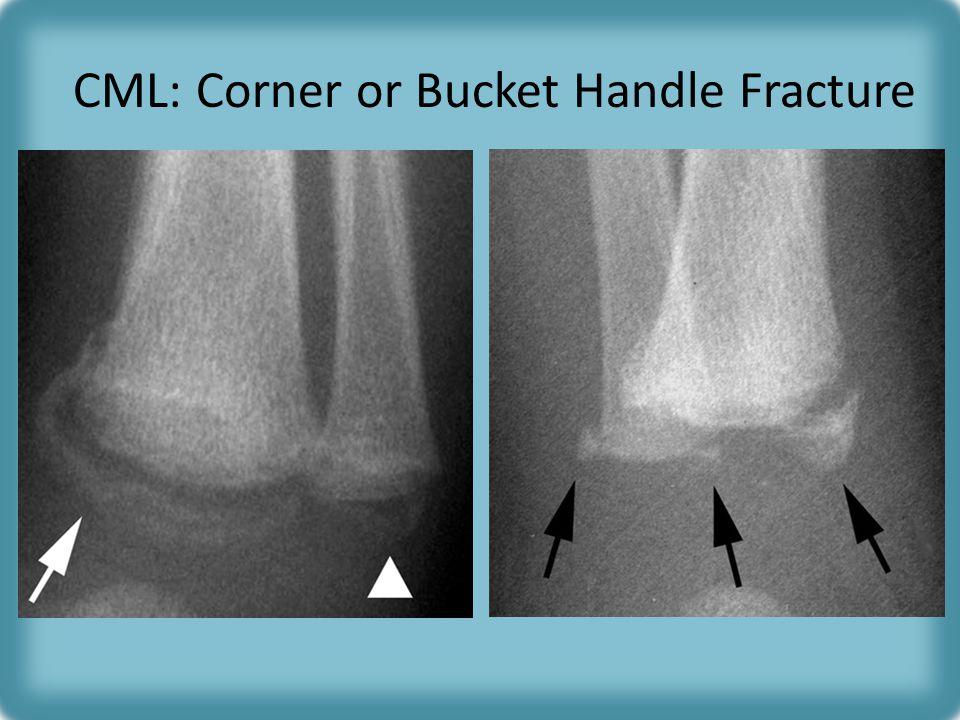 CML: Corner or Bucket Handle Fracture