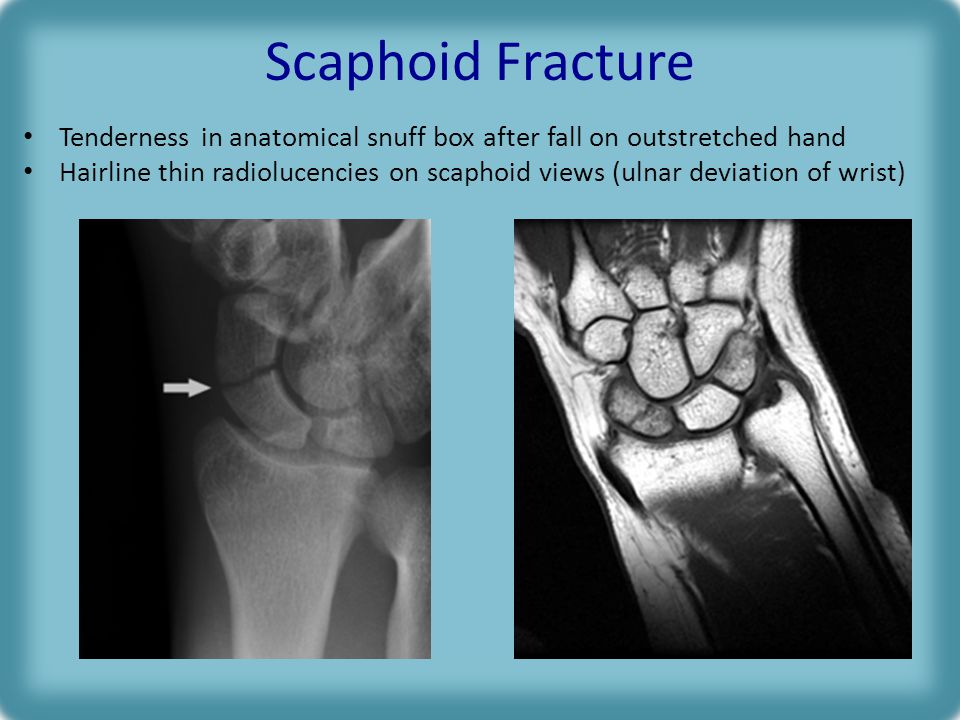 Scaphoid Fracture Tenderness in anatomical snuff box after fall on outstretched hand Hairline thin radiolucencies on scaphoid views (ulnar deviation of wrist)