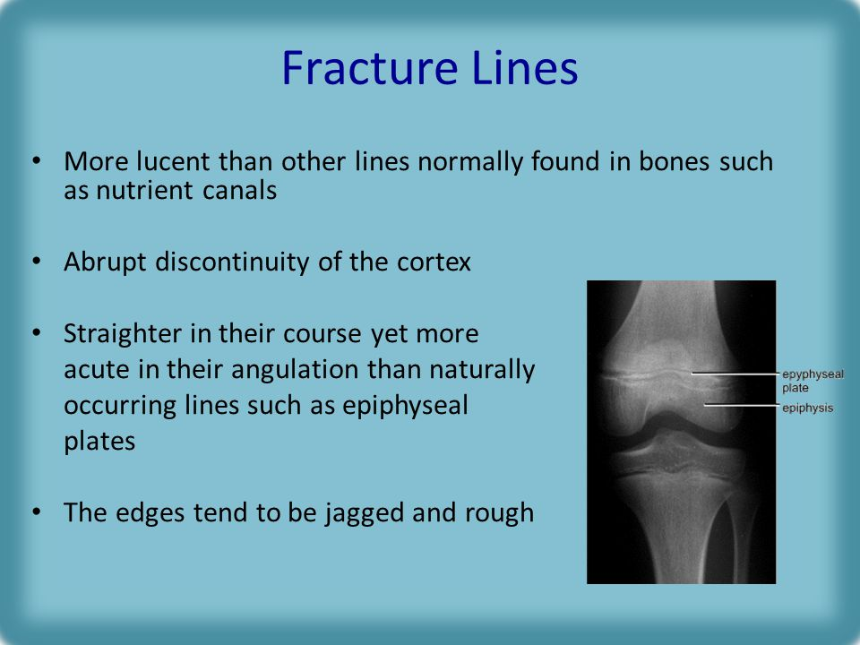 Fracture Lines More lucent than other lines normally found in bones such as nutrient canals Abrupt discontinuity of the cortex Straighter in their course yet more acute in their angulation than naturally occurring lines such as epiphyseal plates The edges tend to be jagged and rough