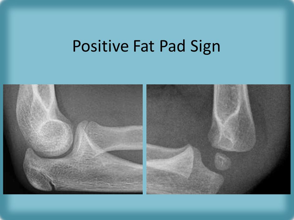 Positive Fat Pad Sign