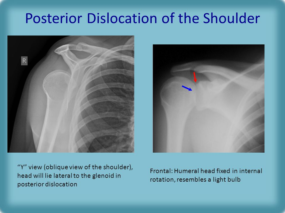 Posterior Dislocation of the Shoulder Y view (oblique view of the shoulder), head will lie lateral to the glenoid in posterior dislocation Frontal: Humeral head fixed in internal rotation, resembles a light bulb