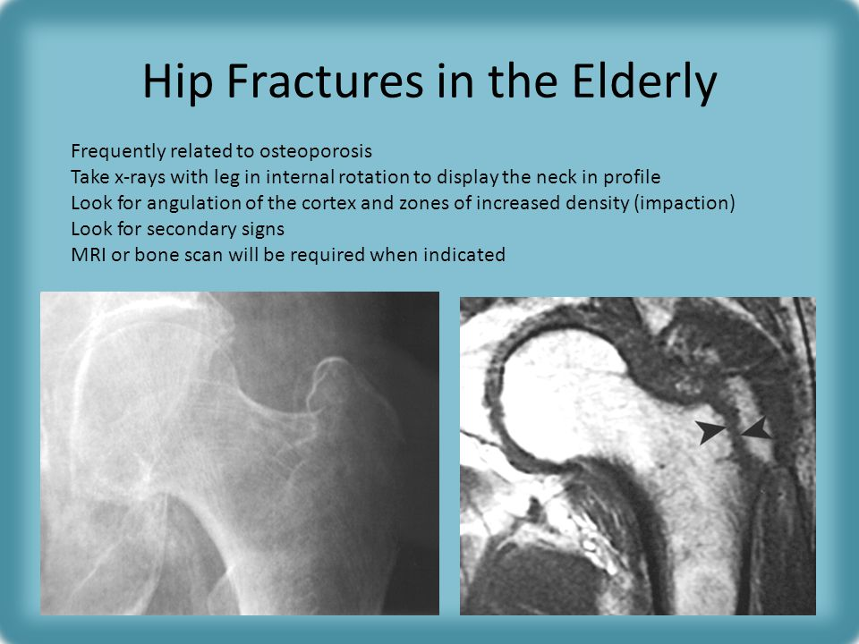 Hip Fractures in the Elderly Frequently related to osteoporosis Take x-rays with leg in internal rotation to display the neck in profile Look for angulation of the cortex and zones of increased density (impaction) Look for secondary signs MRI or bone scan will be required when indicated