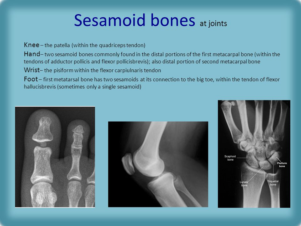 Sesamoid bones at joints Knee – the patella (within the quadriceps tendon) Hand – two sesamoid bones commonly found in the distal portions of the first metacarpal bone (within the tendons of adductor pollicis and flexor pollicisbrevis); also distal portion of second metacarpal bone Wrist – the pisiform within the flexor carpiulnaris tendon Foot – first metatarsal bone has two sesamoids at its connection to the big toe, within the tendon of flexor hallucisbrevis (sometimes only a single sesamoid)