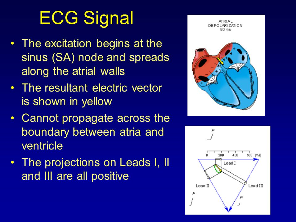 ECG Signal The excitation begins at the sinus (SA) node and spreads along the atrial walls The resultant electric vector is shown in yellow Cannot pro