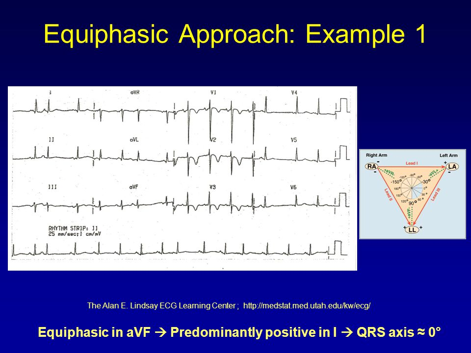 Equiphasic Approach: Example 1 Equiphasic in aVF  Predominantly positive in I  QRS axis ≈ 0° The Alan E. Lindsay ECG Learning Center ; http://medsta