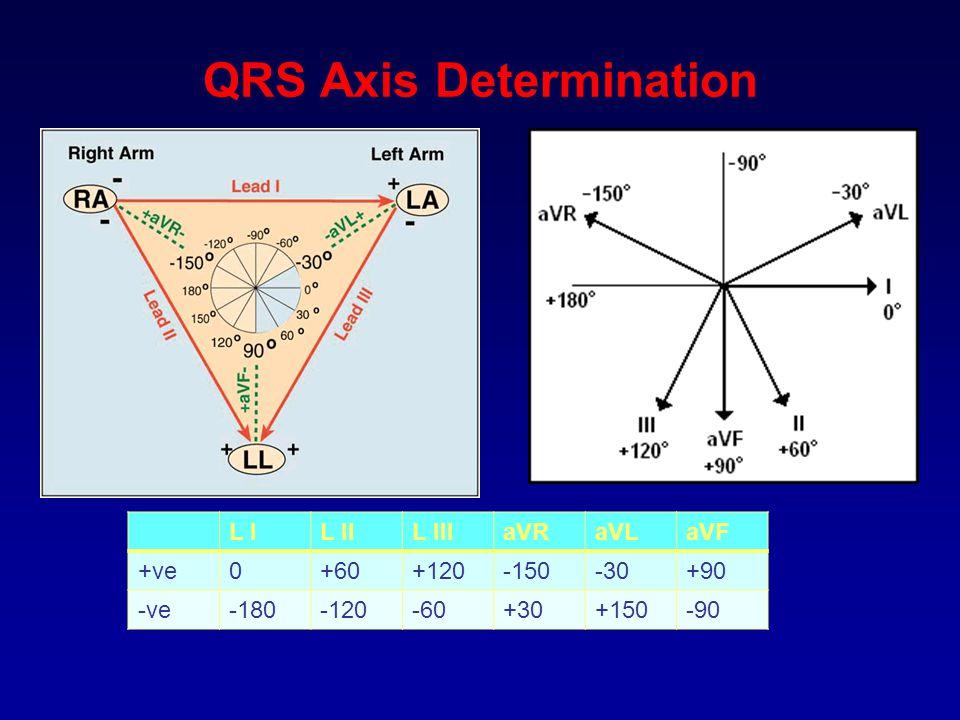 QRS Axis Determination L IL IIL IIIaVRaVLaVF +ve0+60+120-150-30+90 -ve-180-120-60+30+150-90