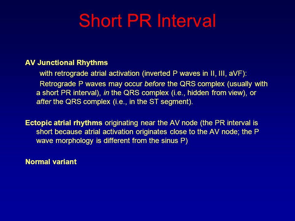 Short PR Interval AV Junctional Rhythms with retrograde atrial activation (inverted P waves in II, III, aVF): Retrograde P waves may occur before the