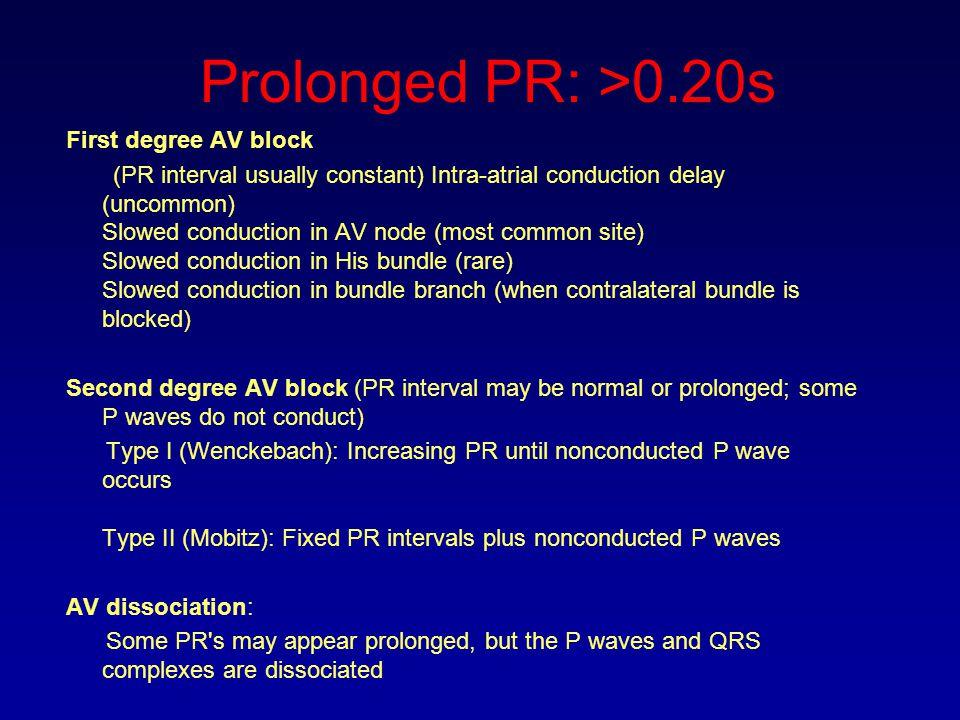 Prolonged PR: >0.20s First degree AV block (PR interval usually constant) Intra-atrial conduction delay (uncommon) Slowed conduction in AV node (most