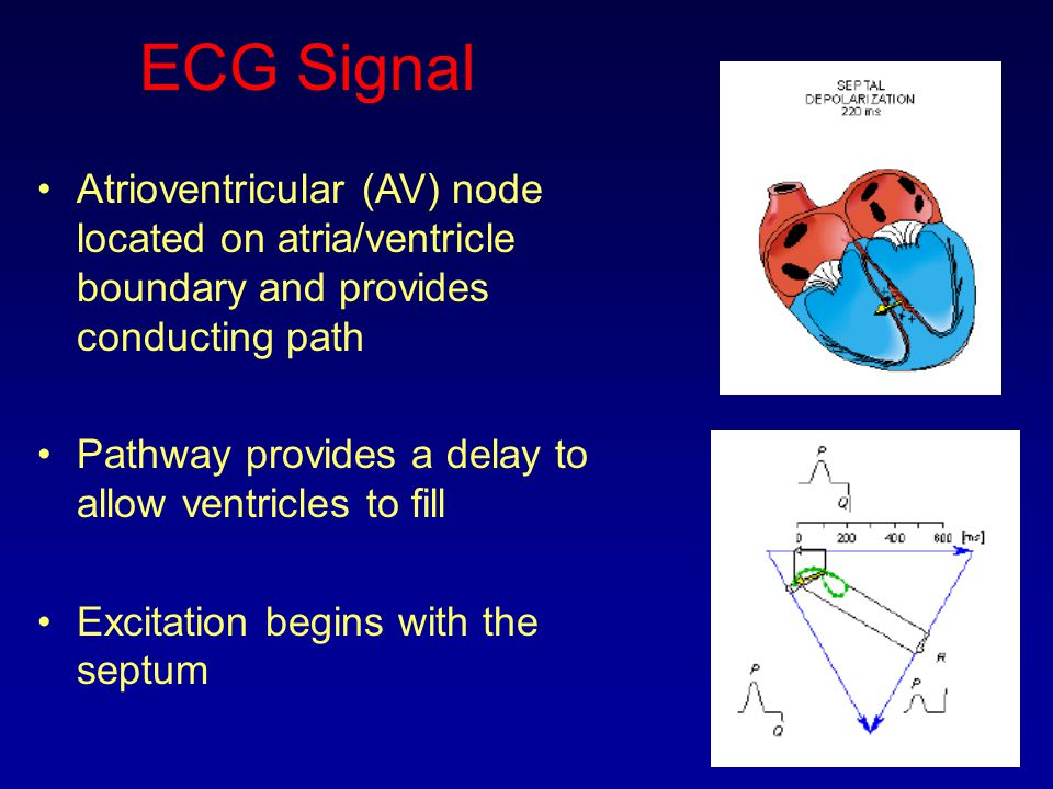 ECG Signal Atrioventricular (AV) node located on atria/ventricle boundary and provides conducting path Pathway provides a delay to allow ventricles to