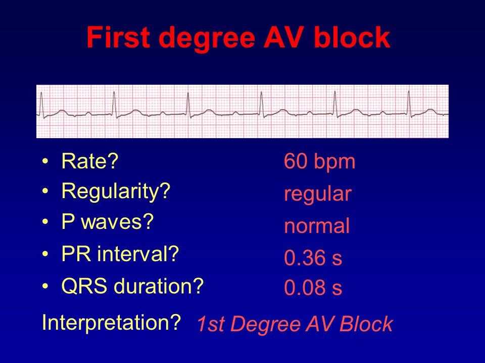 60 bpm Rate? Regularity? regular normal 0.08 s P waves? PR interval? 0.36 s QRS duration? Interpretation? 1st Degree AV Block First degree AV block