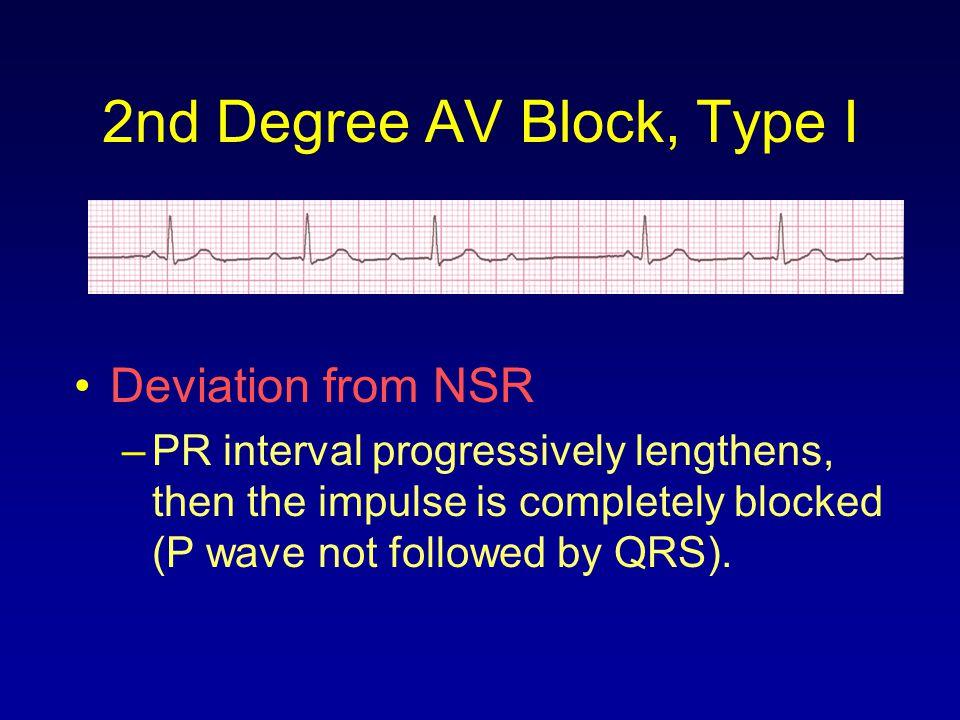 2nd Degree AV Block, Type I Deviation from NSR –PR interval progressively lengthens, then the impulse is completely blocked (P wave not followed by QR