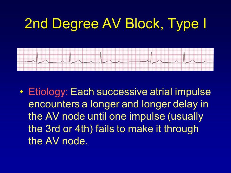 2nd Degree AV Block, Type I Etiology: Each successive atrial impulse encounters a longer and longer delay in the AV node until one impulse (usually th