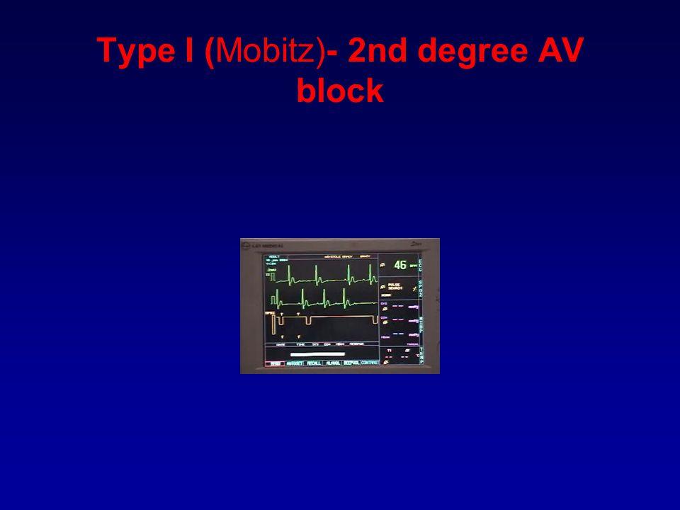 Type I (Mobitz)- 2nd degree AV block