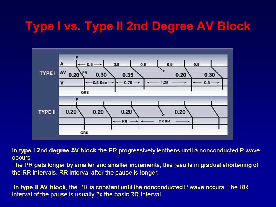 Type I vs. Type II 2nd Degree AV Block In type I 2nd degree AV block the PR progressively lenthens until a nonconducted P wave occurs The PR gets long