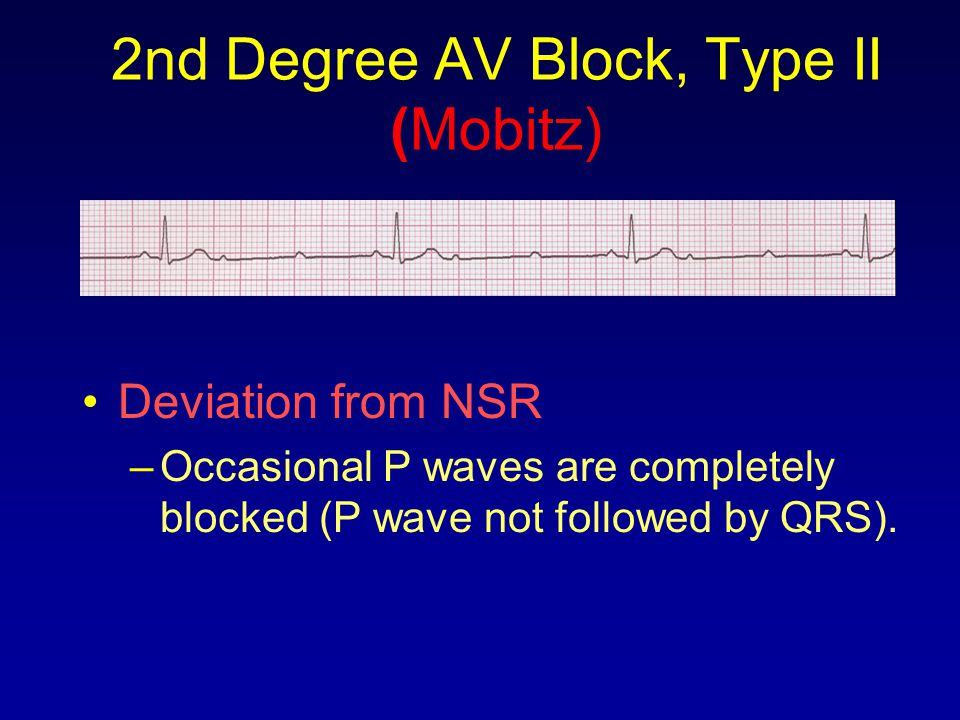 2nd Degree AV Block, Type II (Mobitz) Deviation from NSR –Occasional P waves are completely blocked (P wave not followed by QRS).