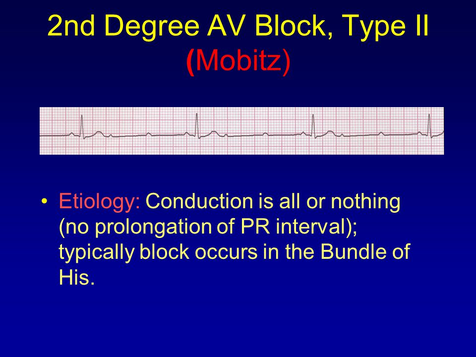2nd Degree AV Block, Type II (Mobitz) Etiology: Conduction is all or nothing (no prolongation of PR interval); typically block occurs in the Bundle of