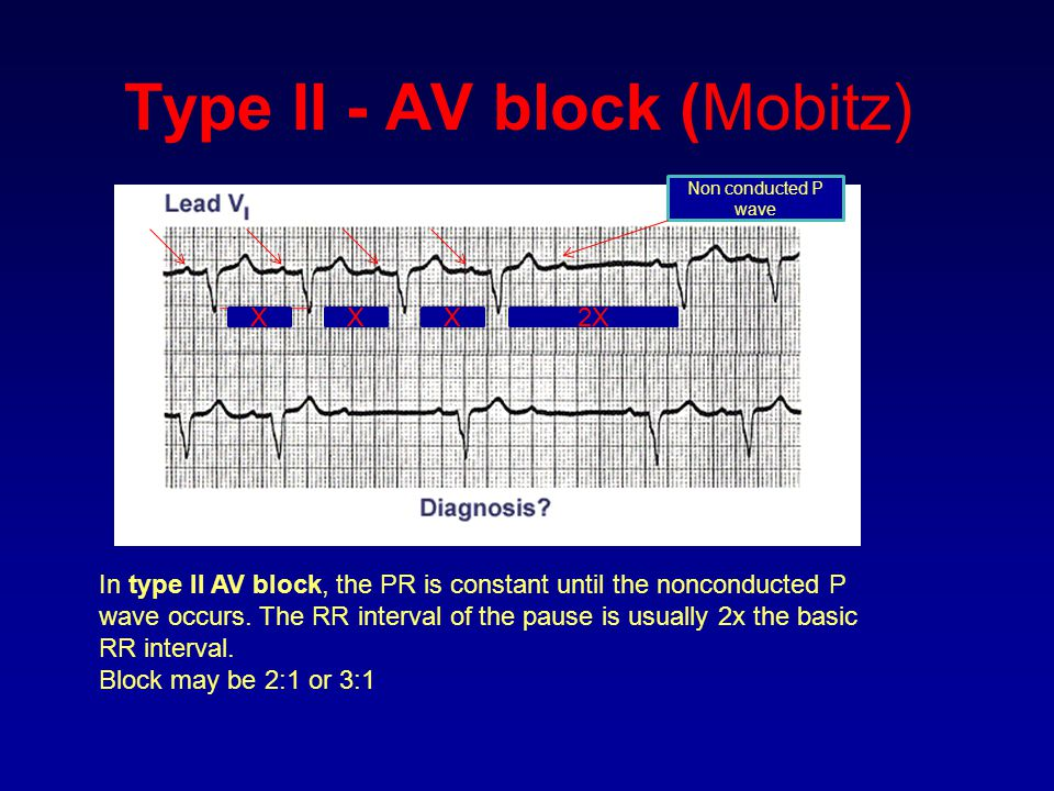 Type II - AV block (Mobitz) In type II AV block, the PR is constant until the nonconducted P wave occurs. The RR interval of the pause is usually 2x t