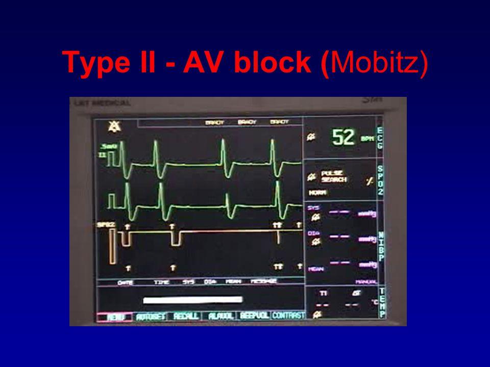 Type II - AV block (Mobitz)