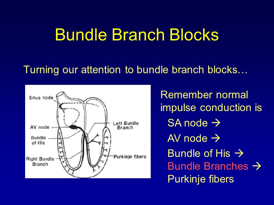 Turning our attention to bundle branch blocks… Remember normal impulse conduction is SA node  AV node  Bundle of His  Bundle Branches  Purkinje fi