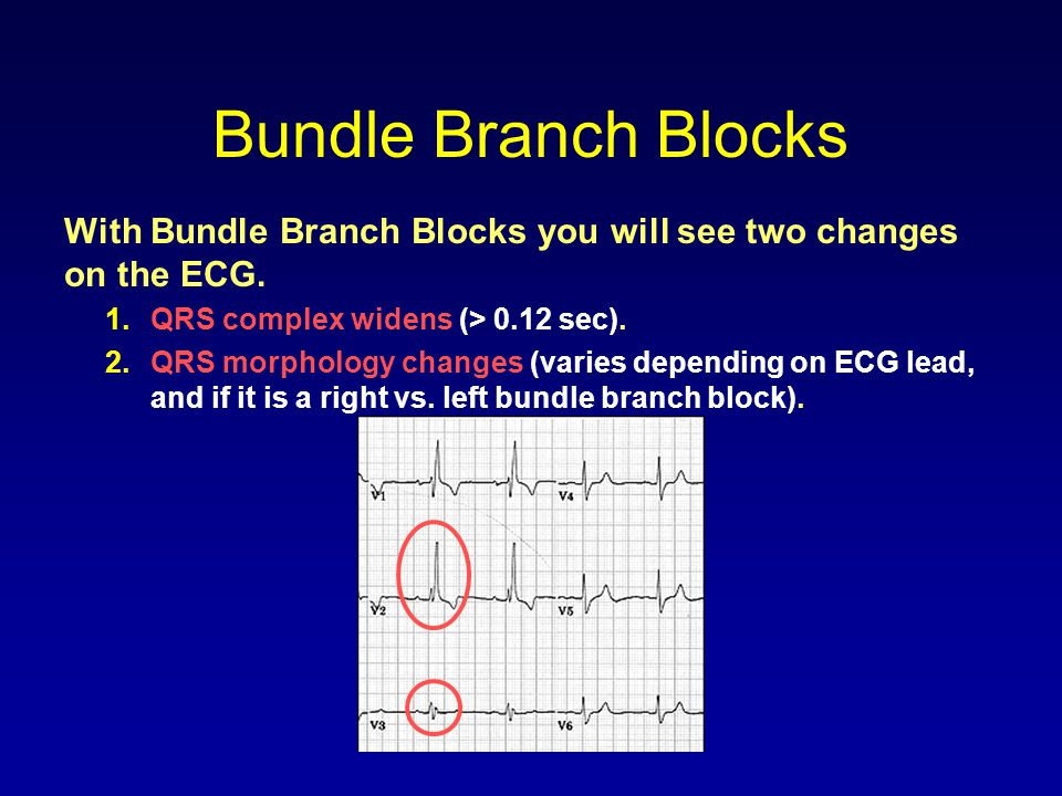Bundle Branch Blocks With Bundle Branch Blocks you will see two changes on the ECG. 1.QRS complex widens (> 0.12 sec). 2.QRS morphology changes (varie