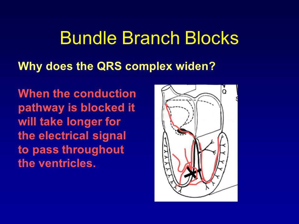 Bundle Branch Blocks Why does the QRS complex widen? When the conduction pathway is blocked it will take longer for the electrical signal to pass thro