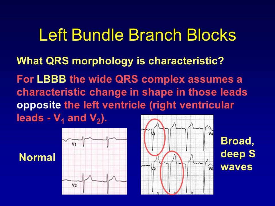 Left Bundle Branch Blocks What QRS morphology is characteristic? For LBBB the wide QRS complex assumes a characteristic change in shape in those leads