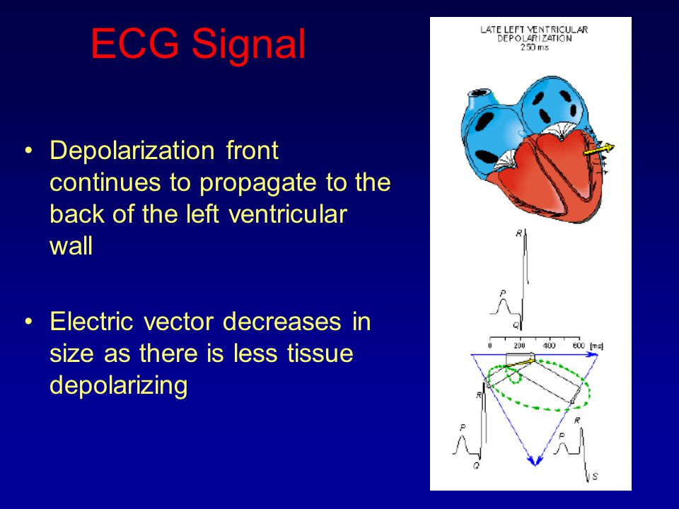ECG Signal Depolarization front continues to propagate to the back of the left ventricular wall Electric vector decreases in size as there is less tis