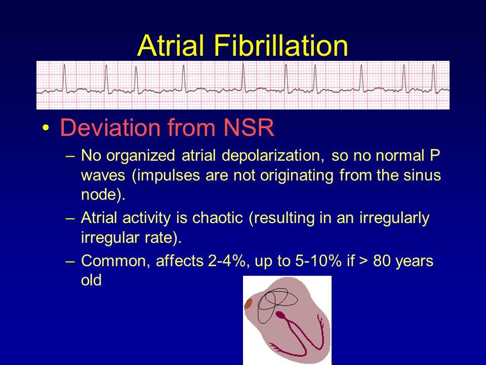 Atrial Fibrillation Deviation from NSR –No organized atrial depolarization, so no normal P waves (impulses are not originating from the sinus node). –