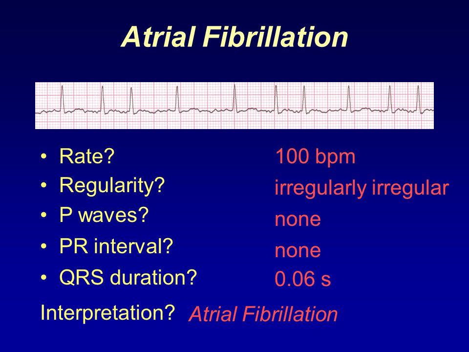 Atrial Fibrillation 100 bpm Rate? Regularity? irregularly irregular none 0.06 s P waves? PR interval? none QRS duration? Interpretation? Atrial Fibril