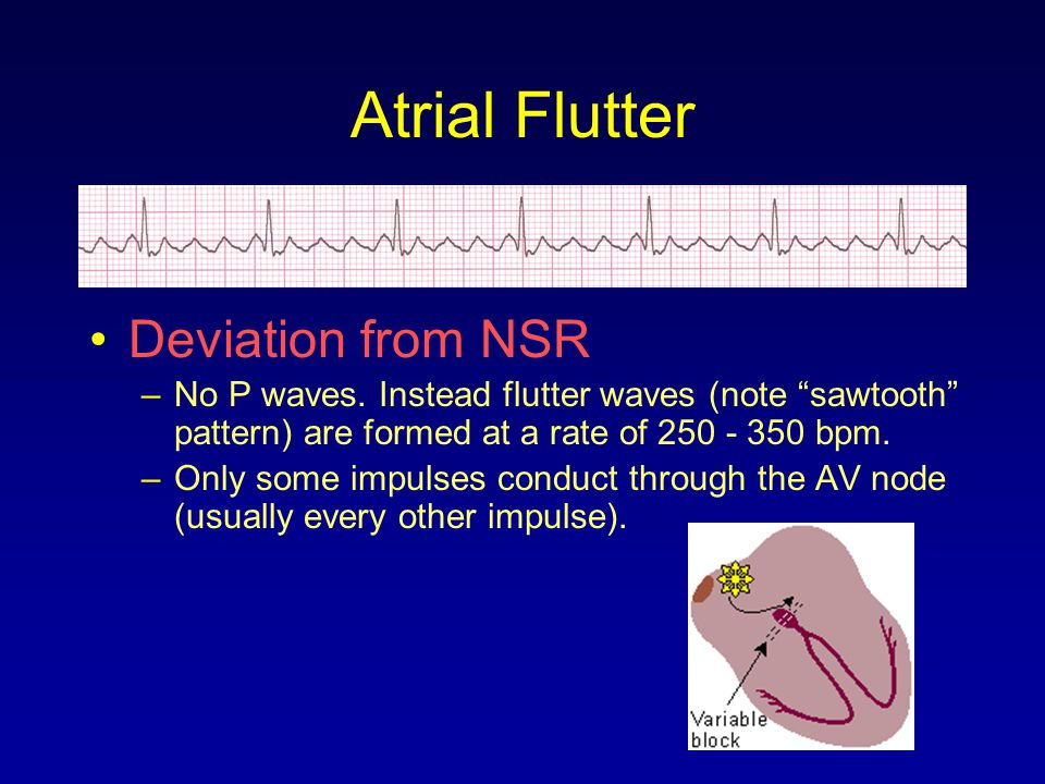 """Atrial Flutter Deviation from NSR –No P waves. Instead flutter waves (note """"sawtooth"""" pattern) are formed at a rate of 250 - 350 bpm. –Only some impul"""