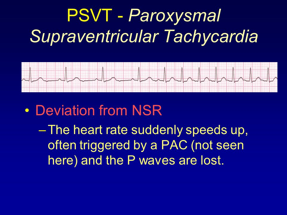 PSVT - Paroxysmal Supraventricular Tachycardia Deviation from NSR –The heart rate suddenly speeds up, often triggered by a PAC (not seen here) and the