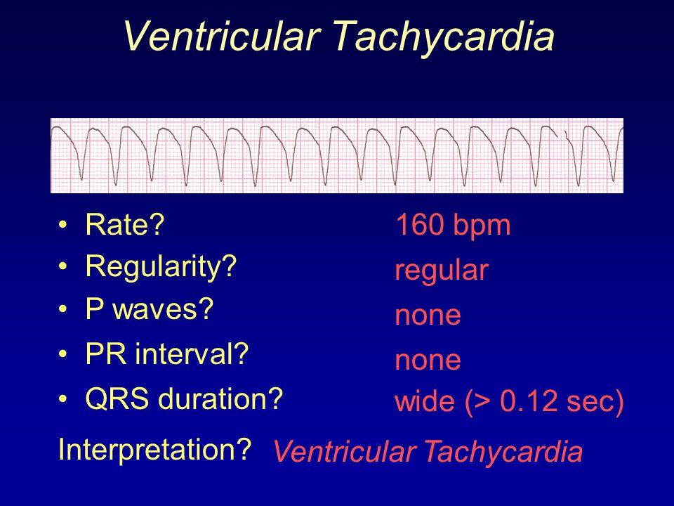 Ventricular Tachycardia 160 bpm Rate? Regularity? regular none wide (> 0.12 sec) P waves? PR interval? none QRS duration? Interpretation? Ventricular