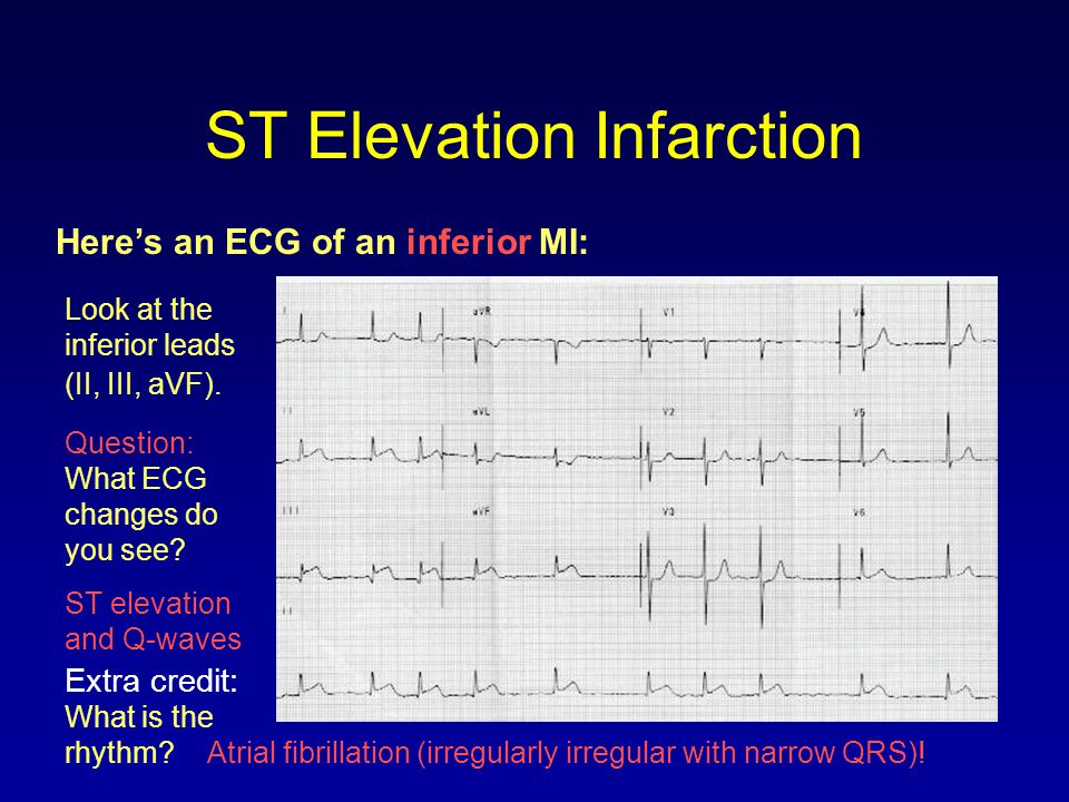ST Elevation Infarction Here's an ECG of an inferior MI: Look at the inferior leads (II, III, aVF). Question: What ECG changes do you see? ST elevatio