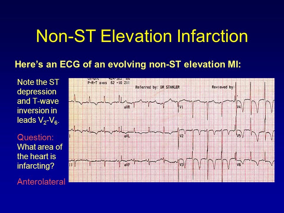 Non-ST Elevation Infarction Here's an ECG of an evolving non-ST elevation MI: Note the ST depression and T-wave inversion in leads V 2 -V 6. Question: