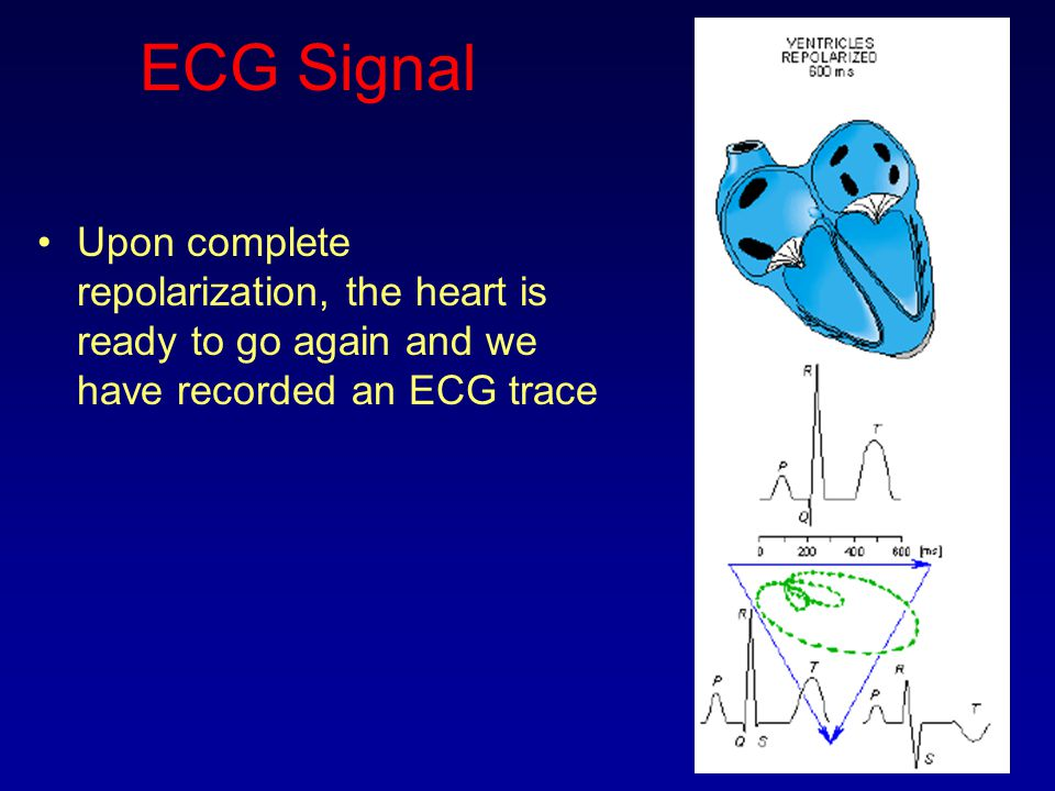 ECG Signal Upon complete repolarization, the heart is ready to go again and we have recorded an ECG trace