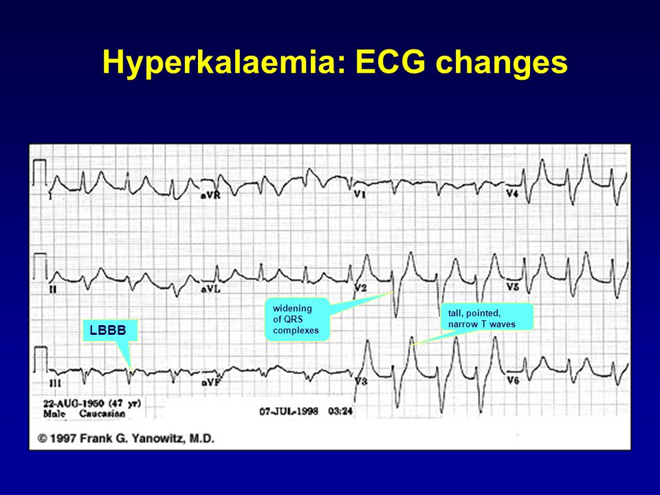 Hyperkalaemia: ECG changes tall, pointed, narrow T waves widening of QRS complexes LBBB