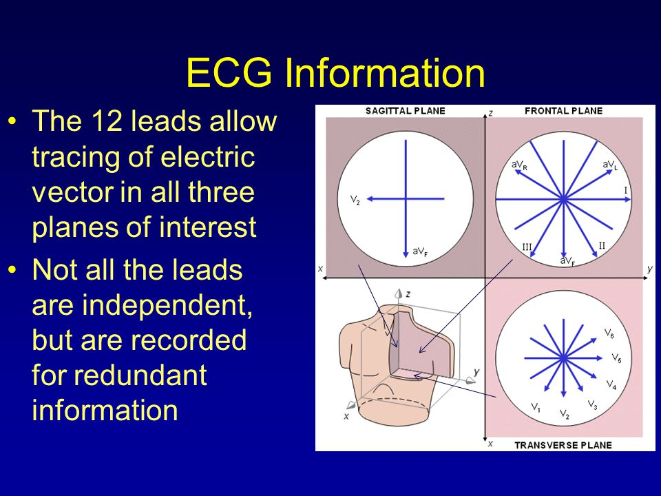 ECG Information The 12 leads allow tracing of electric vector in all three planes of interest Not all the leads are independent, but are recorded for