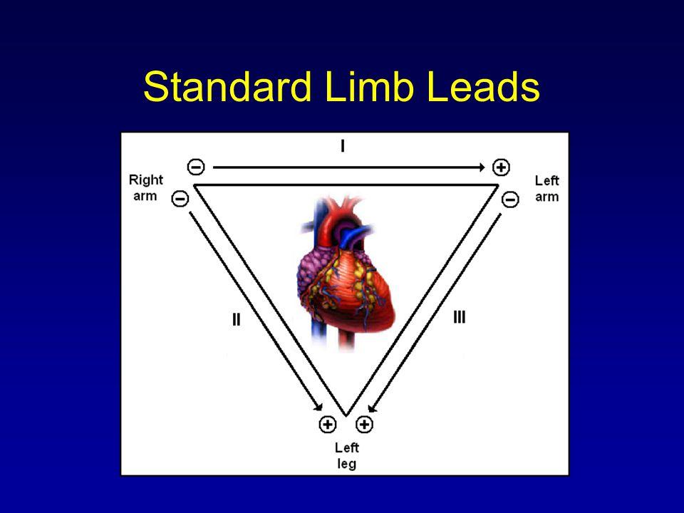 Standard Limb Leads