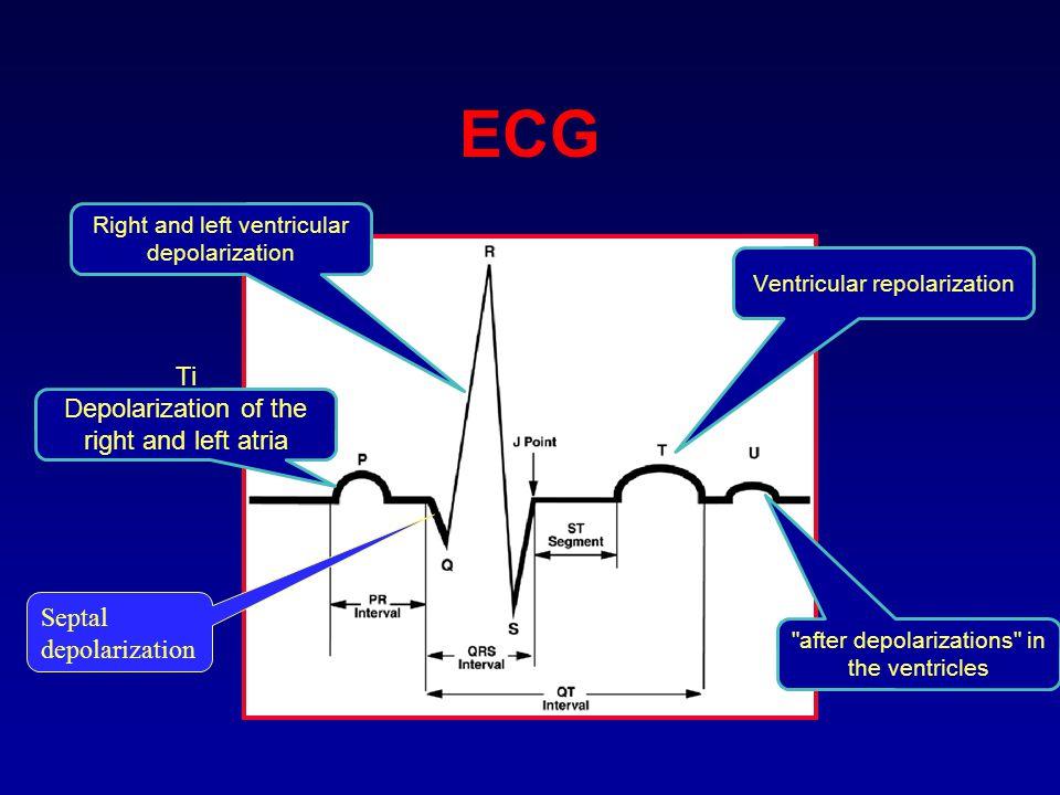 Ti Depolarization of the right and left atria Right and left ventricular depolarization Ventricular repolarization