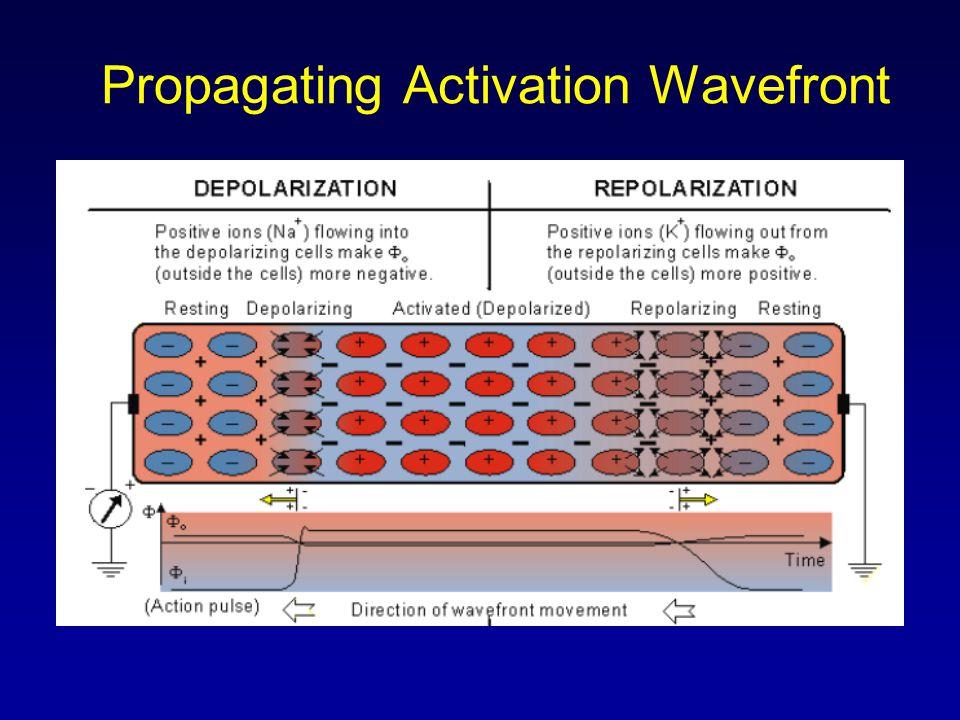 Atrial Flutter Deviation from NSR –No P waves.