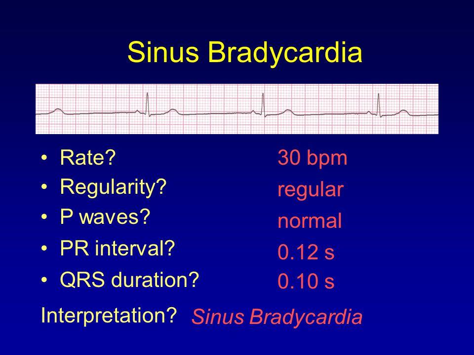 30 bpm Rate? Regularity? regular normal 0.10 s P waves? PR interval? 0.12 s QRS duration? Interpretation? Sinus Bradycardia