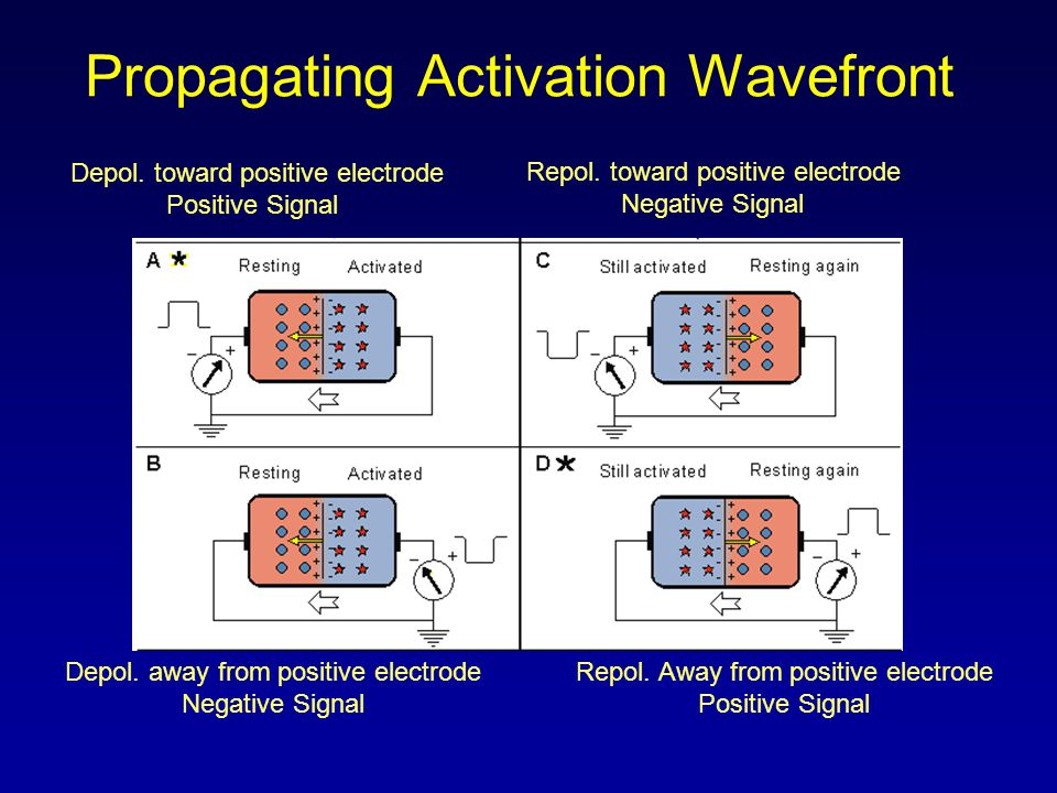 Etiology: SA node is depolarizing slower than normal, impulse is conducted normally (i.e.